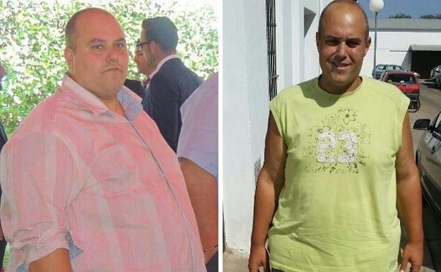 Obesidad antes y despues de adelgazar